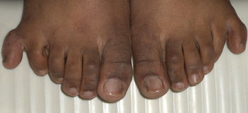 Six doigts dans les deux pieds image libre de droits