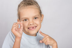 Six year old girl with a smile, pointing at the fallen baby tooth. Six year old girl showing her fallen Milk front upper teeth Stock Photo