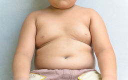 The size of stomach of children with overweight. Royalty Free Stock Image