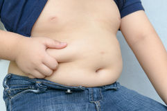 The size of stomach of children with overweight. Royalty Free Stock Photo