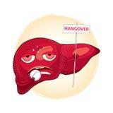 Sjuk lever som tar preventivpillerar och innehavet ett tecken med ordet BAKRUS Bakrus eller effekter av alkohol i tecknad film ut vektor illustrationer