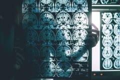 Sjukdom för Alzheimer ` s på MRI royaltyfria bilder