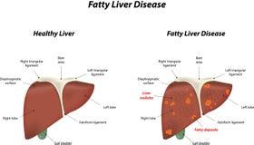 Sjukdom för fettig lever vektor illustrationer