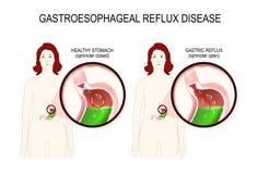 Sjukdom för Gastroesophageal lågvatten GERD vektor illustrationer