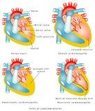 Sjukdomar av hjärtamuskeln stock illustrationer