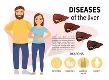 Sjukdomar av levern stock illustrationer