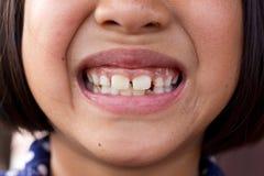 Sjukliga tänder royaltyfri foto