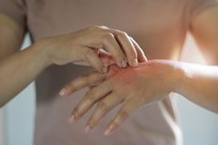 Sjukvård- och läkarundersökningbegrepp Kvinnlig som skrapar klådan på hennes hand, orsak av att klia från hudsjukdomar royaltyfri foto