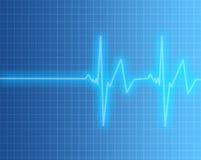 skärm för hjärtapulshastighet Arkivbilder