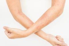 Skór wysypki, alergii kontaktowy dermatitis, alergiczny substancje chemiczne obrazy stock