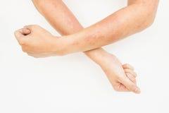 Skór wysypki, alergii kontaktowy dermatitis, alergiczny substancje chemiczne zdjęcie royalty free