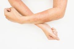 Skór wysypki, alergii kontaktowy dermatitis, alergiczny substancje chemiczne obrazy royalty free