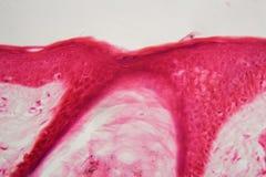 Skóra z follicle pod mikroskopem zdjęcia royalty free