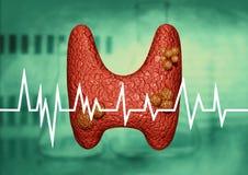Sköldkörtelcancer som diagnostiseras i ett klinisk och laboratoriumundersökningsrum framförande 3d vektor illustrationer