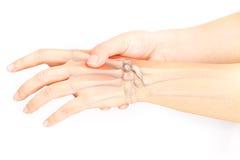 Skada för handben arkivbilder