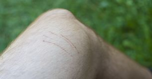 Skada för kattskrapa på manfot arkivbilder
