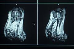 Skada för tår för fot för resultat för MRI-bildläsningsprov arkivbilder