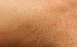 Skadad hudtextur från skada Fotografering för Bildbyråer