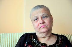 skallig sjuk kvinna Royaltyfria Bilder
