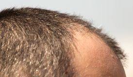 Skalliga fläckar på huvudet av en man arkivfoton