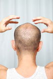 Skalpu masaż Zdjęcia Stock