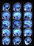 skan mózgu royalty ilustracja