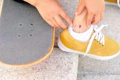 Skateboard injury Stock Image