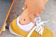 Skateboard injury Stock Photo