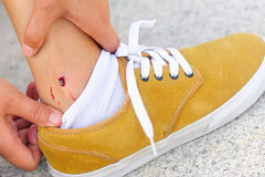 Skateboard injury Royalty Free Stock Images