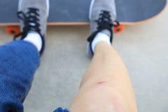 Skateboarder verwondde benen terwijl het met een skateboard rijden Stock Foto