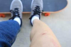 Skateboarder verwondde benen terwijl het met een skateboard rijden Royalty-vrije Stock Foto