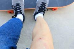 Skateboarder verwondde benen terwijl het met een skateboard rijden Royalty-vrije Stock Afbeeldingen