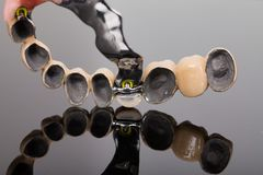 Skeletachtige prothese - kunst van dentsitry Stock Foto's