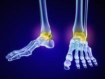 Skeletachtige voet - injuryd talusbeen Medisch nauwkeurige 3D illustratie Stock Afbeeldingen