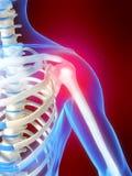 Skeletal shoulder with pain Stock Image