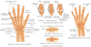 Skeletal System Phalanges Stock Image