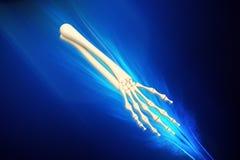 Skeleton arm Royalty Free Stock Image