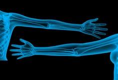 Skeleton arm x-ray render Stock Image