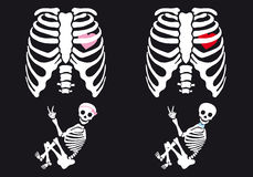 Skeleton Baby Boy And Girl, Vector Set Royalty Free Stock Images