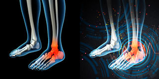 Skeleton foot. 3d render human foot pain with the anatomy of a skeleton foot stock image