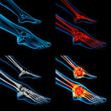 Skeleton foot Royalty Free Stock Photos