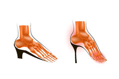 The skeleton of the foot is low and a high heel Stock Photos