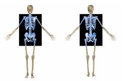 Skeleton front and back x rays Royalty Free Stock Photo