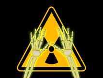 Skeleton hands with symbol of radiation warning Stock Photography