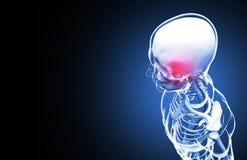Skeleton. Headache. 3D Illustration. Stock Photo