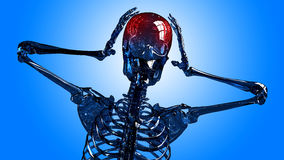 Skeleton headache Stock Photo
