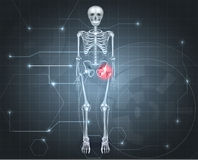 Skeleton with Hip joint pain Royalty Free Stock Photography