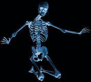 Skeleton kneel x ray Stock Photo
