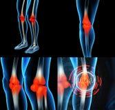 Skeleton leg vector illustration