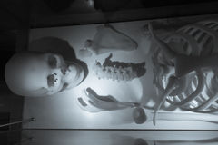 Skeleton made of resin. At hospital royalty free stock photography